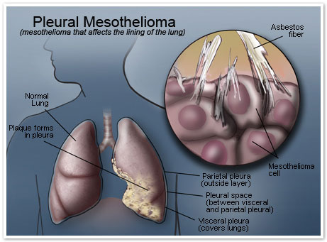 Pleural Mesothelioma Asbestos Lung Cancer